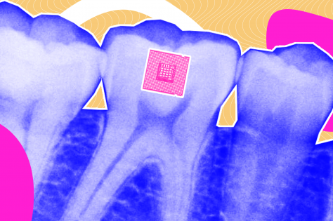 Tooth-mounted sensor by Tufts University